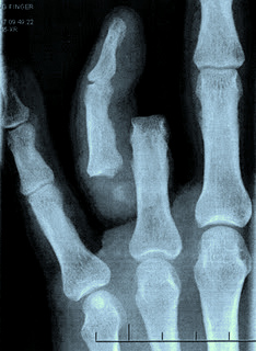 broken_finger_xray2